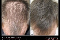 24 Year Old Male – Results after 6 Months Of Office Treatment