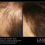 68 Year Old Female – Results After 12 Months In Office Treatment & 18 Months In Home Treatment