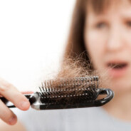 Genetics as a Cause of Hair Loss