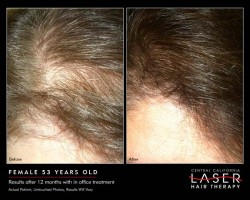 Female Thinning Hair