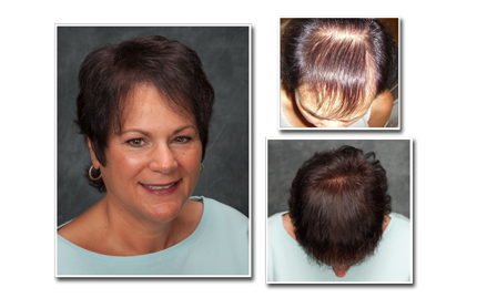 Are you suffering from hair loss and looking for answers?